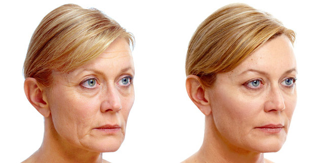 Non-Surgical Facelift - PDO Thread - Richard CarlsonJacksonville, FL